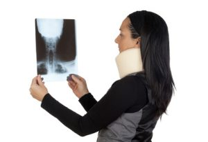 首のレントゲンを見る女性