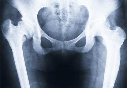 骨盤がゆがむ原因
